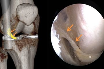 According to the recently published study, the AIML is an anatomical variant of the suspension of the external meniscus.